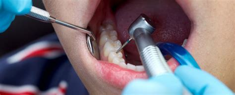 'No Drill' Dentistry Prevents Tooth Decay, Lowers Need For